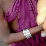 World Rabies Day 2016: eradicare la rabbia a livello globale è possibile