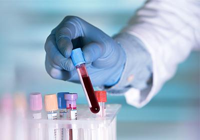 test sierologico titolazione anticorpi rabbia