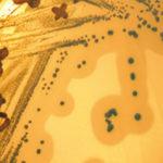 Corso ECM / Il challenge test: strumento operativo per valutare Listeria monocytogenes alla luce del Reg. CE 2073/2005