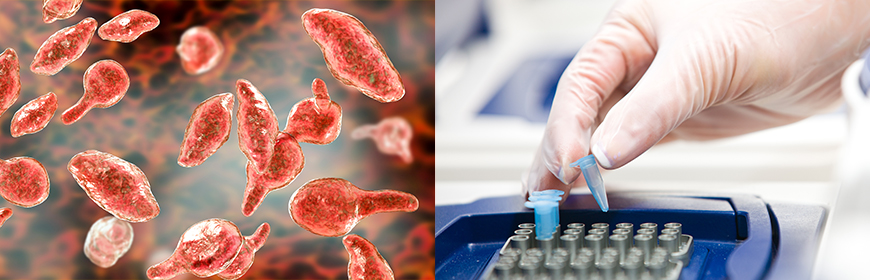 Nuova tariffa per analisi RT PCR per Mycoplasma gallisepticum e Mycoplasma synoviae eseguite nel medesimo campione