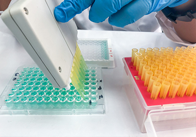 metodica sierologica per rilevare anticorpi contro SARS-COV-2
