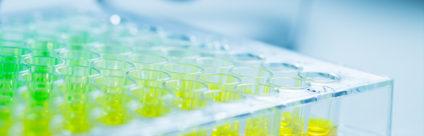 Addio all'antibiogramma: da gennaio i test di sensibilità agli antimicrobici eseguiti tramite la MIC