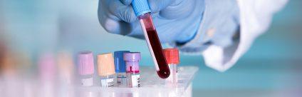 Servizio di titolazione anticorpi rabbia sospesa dal 20 al 24 maggio 2019